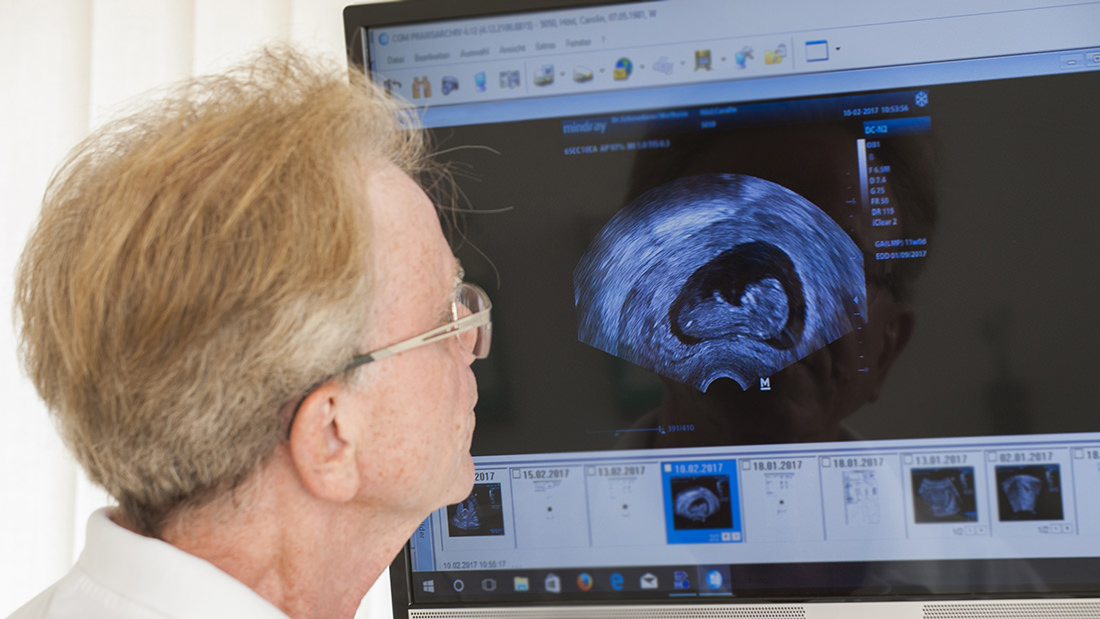 Frauenarzt Weilheim - Schmederer - Praxis - Ultraschall